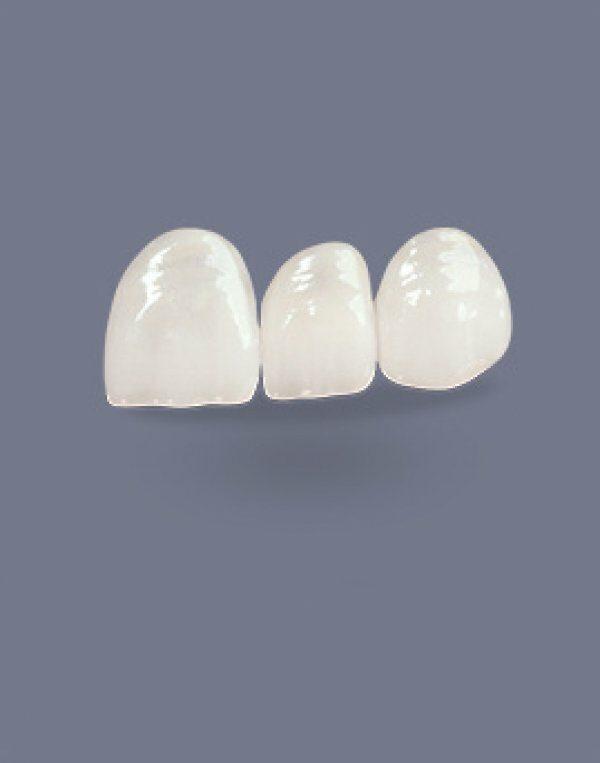 Estetinis dantų protezavimas